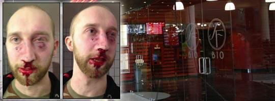 Filip Wennerlund lade upp bilderna tagna efter misshandeln på Facebook. Foto: Sara Strandlund, Privat