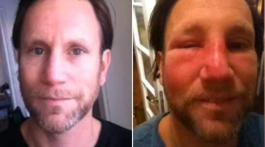 Peter Jihdes ansikte svullnade upp efter att han klämt en finne. Foto: TV4