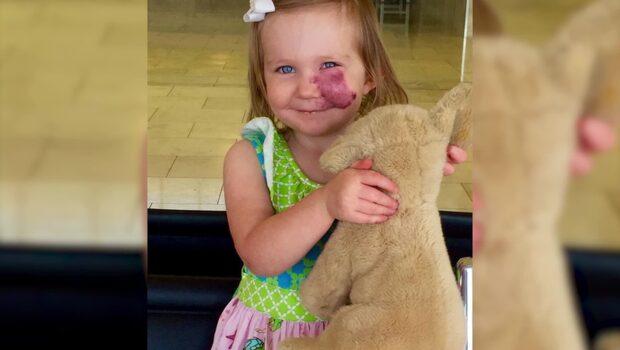 2-åriga flickan med födelsemärke i ansiktet vet redan hur man handskas med mobbare