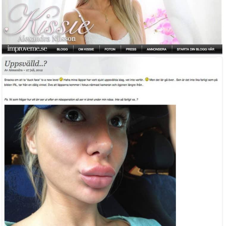 """Alexandra """"Kissie"""" Nilsson har bloggat flera gånger om sina läppar. Här, i ett inlägg från 2+12 berättar hon om hur hennes läppar blivit uppsvällda."""
