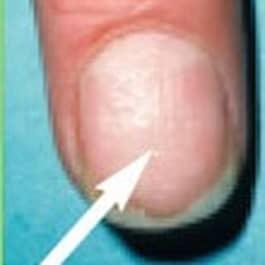ränder i naglarna