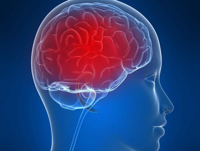 Huvudvärken påvekrar hjärnan och kan bland annat göra dig snurrig.