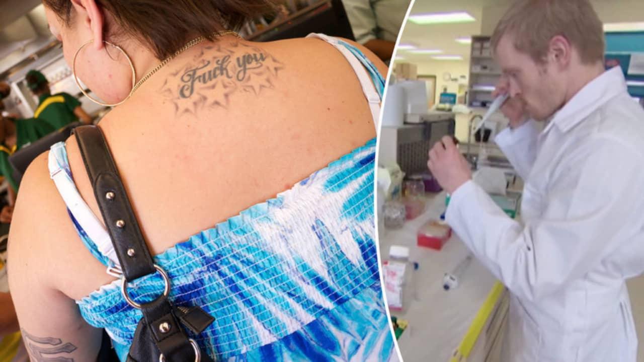 ta bort tatuering med salt