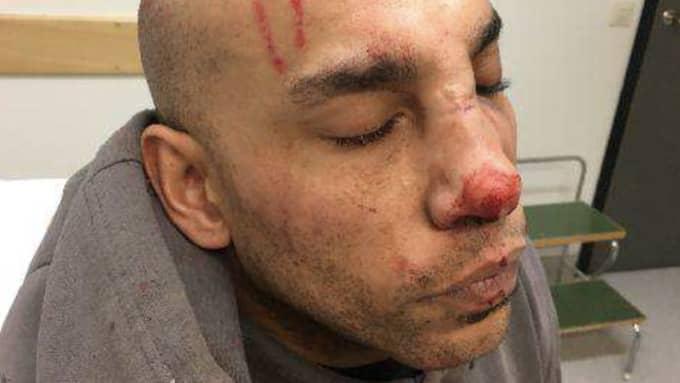 I utredningen framgår det att ett skojbråk urartade – i dödligt våld. Foto: Polisen