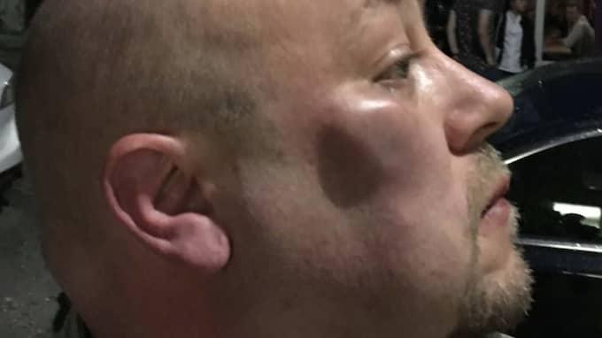 """""""Det small flera gånger, han slog mig i nacken"""", säger Fredrik Allvin, 43. Foto: PRIVAT"""