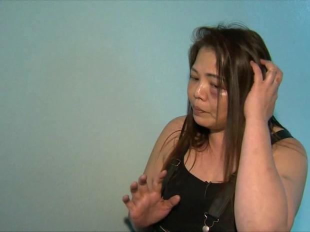 Hon överlevde rånarens brutala attack