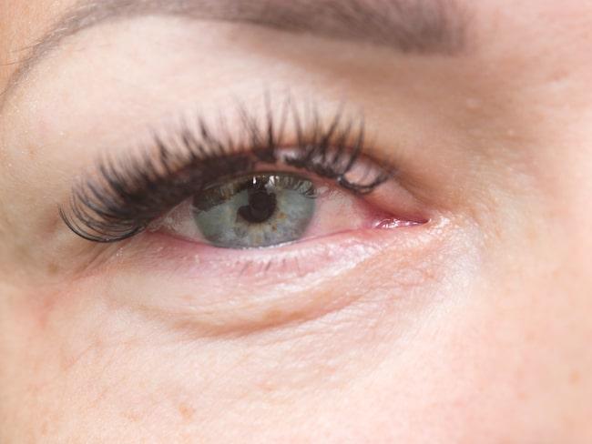 allergisk reaktion vid fransförlängning