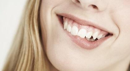 Vill du ha ett vitt leende? Här är metoderna.