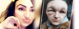 Ansiktet svullnade upp efter behandlingen