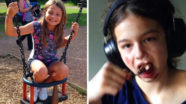 11-åriga flickan började sluddra – 72 timmar senare var hon stum