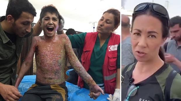 Brännskadade pojken skriker av smärta på sjukhuset