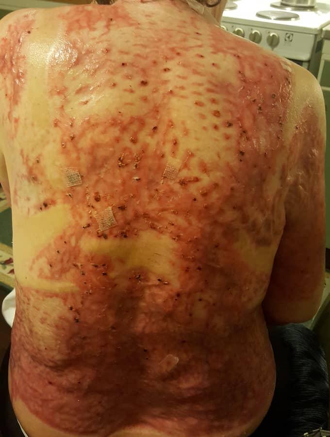 Läkarna tvingades till omfattande hudtransplantationer på Kerstins rygg. Foto: Privat
