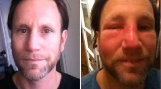 infektion i ansiktet