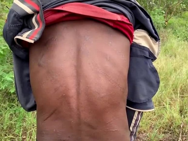 Fredspristagarens trupper uppges mörda lokalbefolkningen i Etiopien