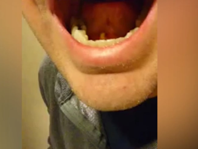 knöl under tungan