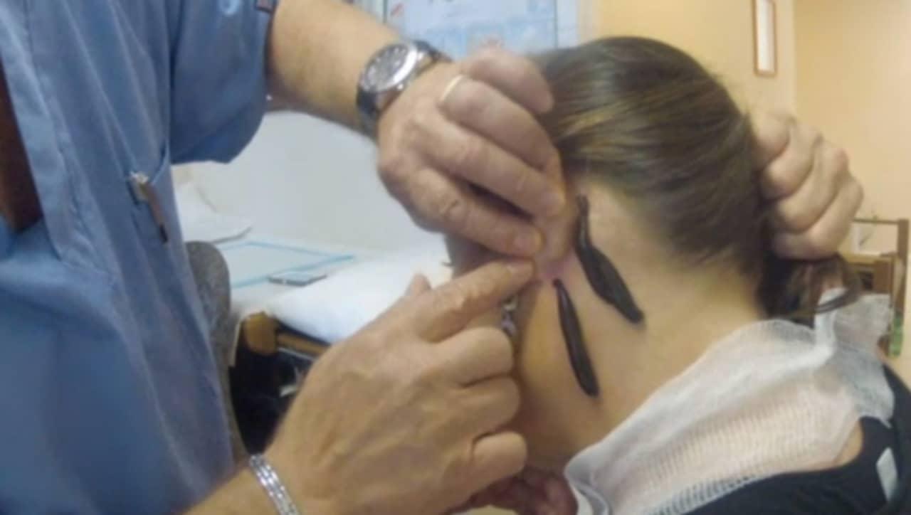 ny bdsm ansiktsbehandling