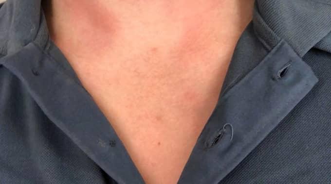 Daniel hade synbara märken på halsen efter överfallet. Foto: PRIVAT