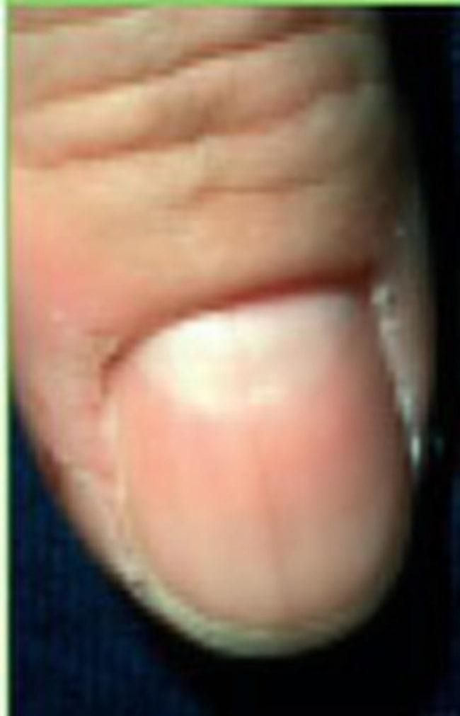 svarta prickar under nageln
