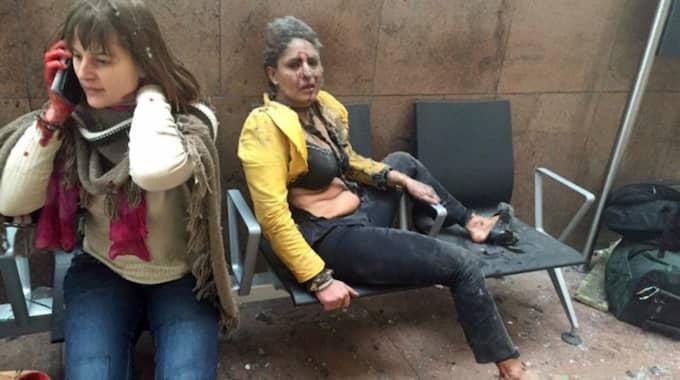Skadade människor på flygplatsen i Bryssel. Foto: Ketevan Kardava, / AP