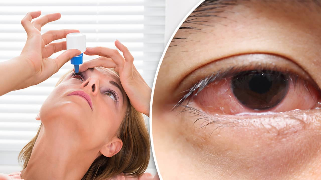 hur länge smittar ögoninflammation