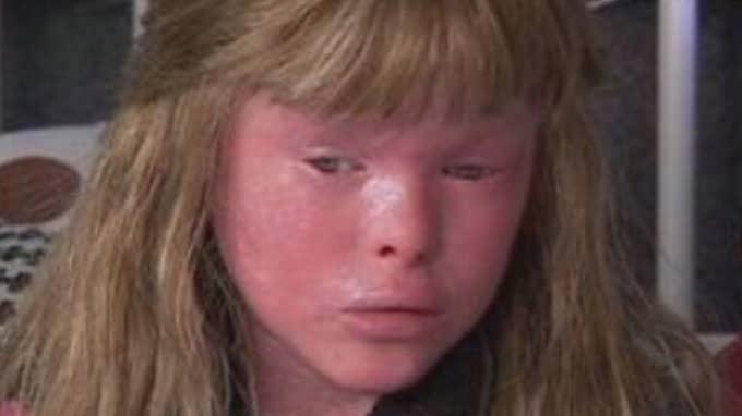 För att motverka problemen med sin hy måste Jetesa smörja in sig sex gånger per dygn och bada två gånger. Här är Jetesa när hon var yngre och sjukdomen visade sig tydligt.