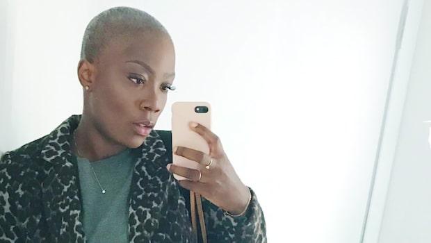Angela, 29, fick en ovanlig  diagnos – rakade bort håret