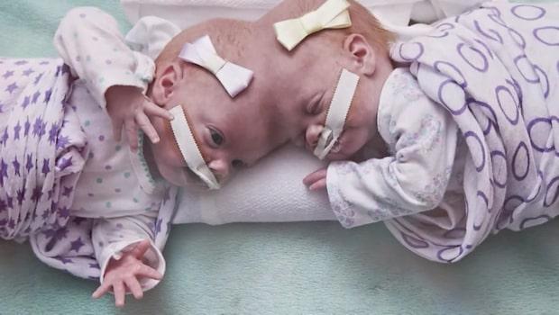 Siamesiska tvillingar separerade - satt fast i huvudet