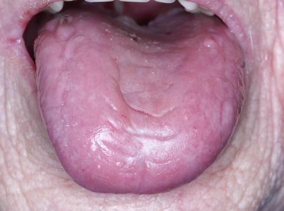 stickningar i tungan