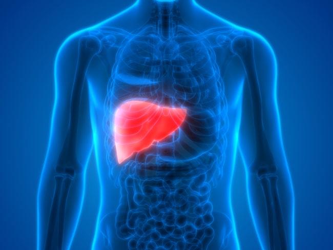 Fettlever är en icke-alkoholorsakad leversjukdom som drabbar överviktiga personer, och kan ge bestående leverskador.