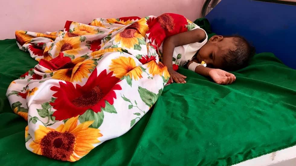 SVÅRT UNDERNÄRD. Hanan Halmi har lagt sig ner på sängen på barnsjukhuset i Aden. Hon blev svårt undernärd efter att hon fick diarré. Foto: MAGDA GAD