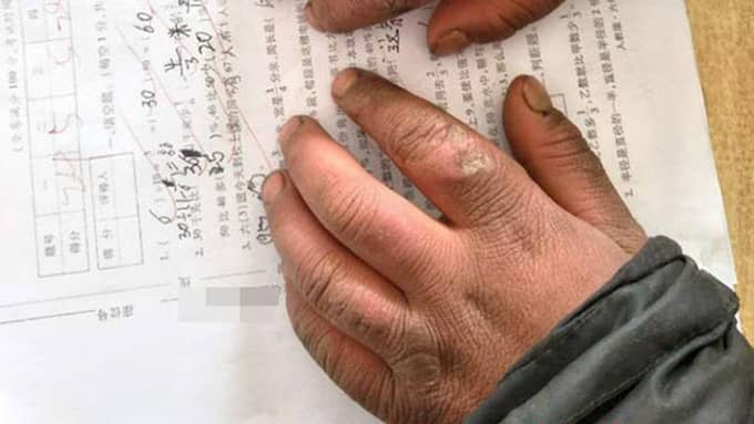 Wangs händer var nariga och smutsiga.