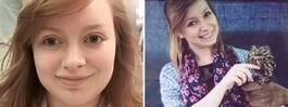 Lauren, 23, gick till läkaren med tandvärk –fick diagnos