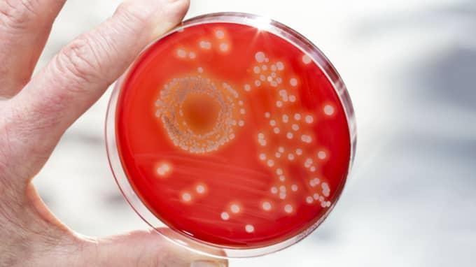 Enligt Världshälsoorganisationen är multiresistenta bakterier ett globalt hot mot folkhälsan. Foto: Richard Ström /Expressen