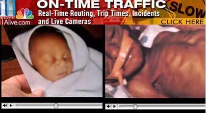 Crown Shakur dog sex veckor gammal av svält. Hans föräldrar är veganer och anser att de bara följde sin övertygelse att inte äta animaliska produkter. Foto: Faksimil 11 Alive News
