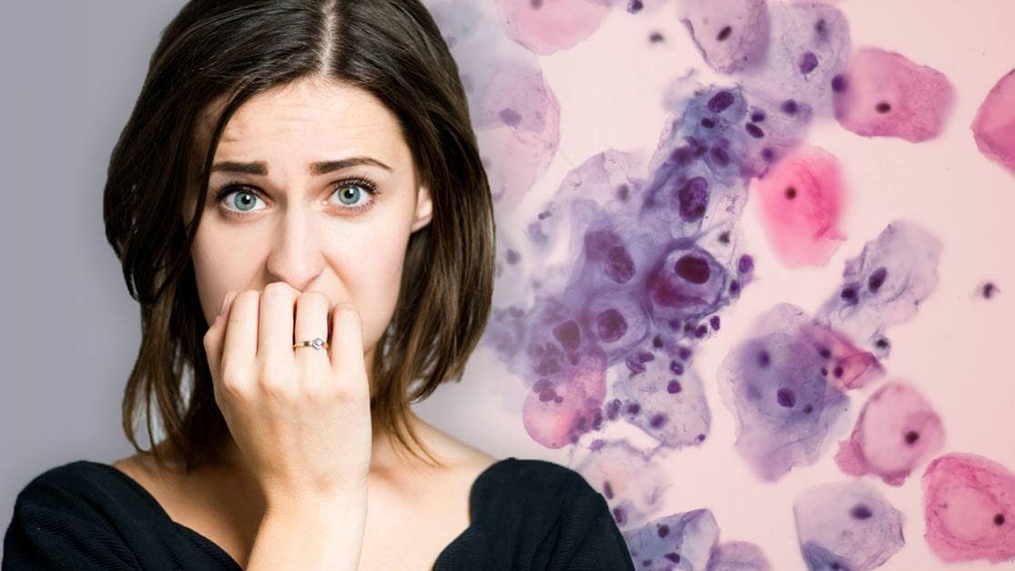 ont i magen efter cellprov