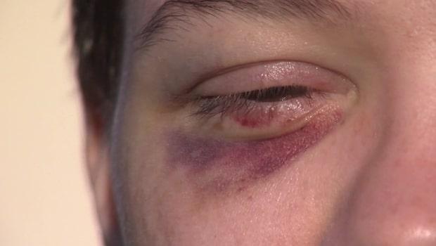 16-åringen överfölls av killgäng – för att hon är lesbisk