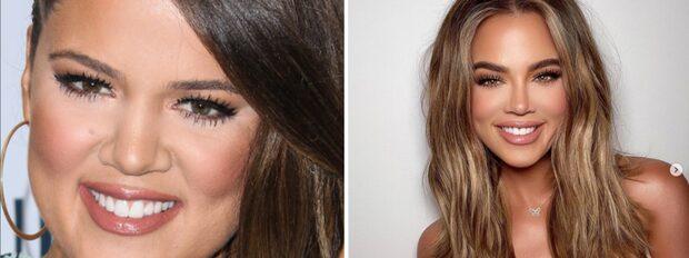 Därför är Khloe Kardashian helt förändrad