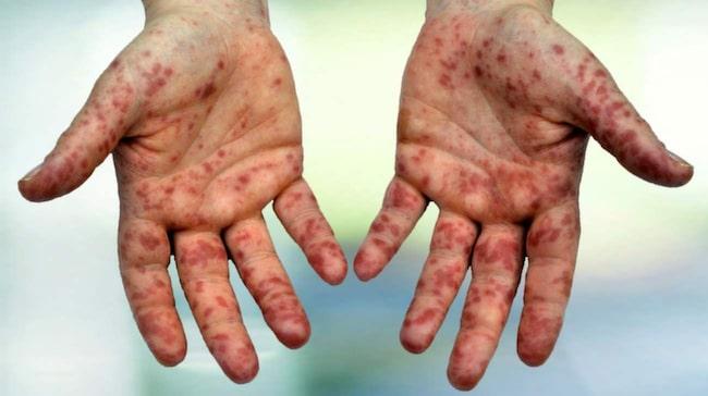 hur smittar stafylokocker
