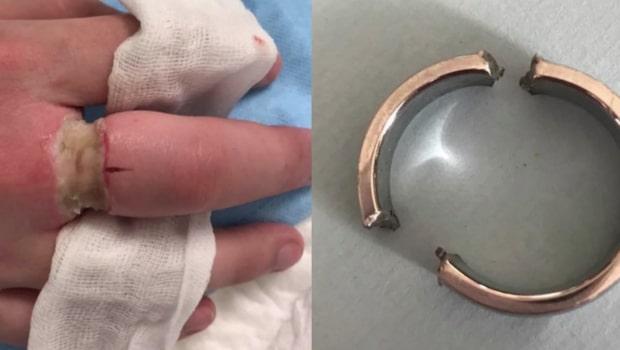 Sex timmars sjukvård för att få av en stålring