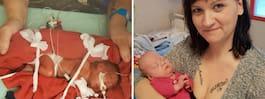 """Agnes vägde bara 800 gram – fick hjälp av """"okänt"""" nätverk"""
