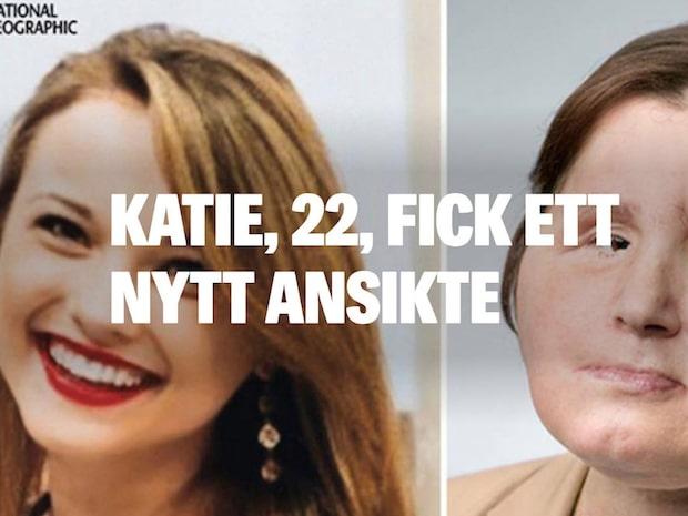 Katie, 22, har fått ett nytt ansikte