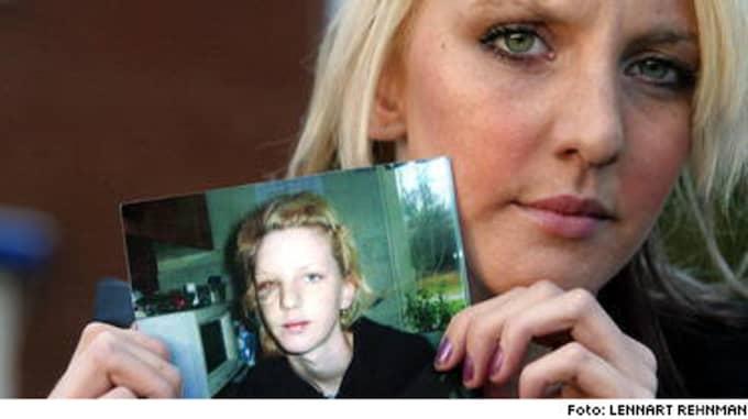 För knappt ett år sedan blev Jenny, 19, brutalt misshandlad och våldtagen av fem unga män. På bilden visar hon sitt ansikte efter att läkarna opererat hennes sönderslagna okben.