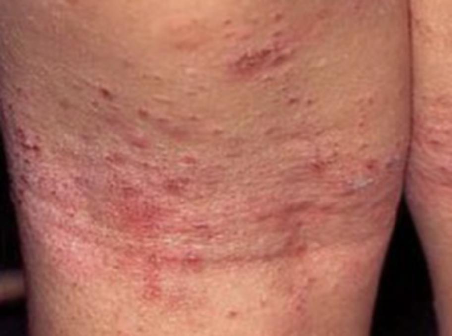 svampinfektion under bröstet