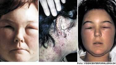 allergisk reaktion svullnad i ansiktet